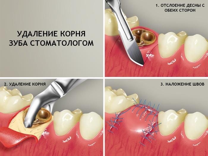 Как удаляют корни сгнившего зуба